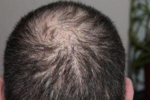 perdita di capelli 300x200 - I migliori integratori per capelli per donare tono e luminosità alla nostra chioma