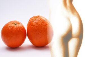 pelle a buccia di arancia 300x200 - Il miglior drenante efficace per rimuovere i liquidi in eccesso